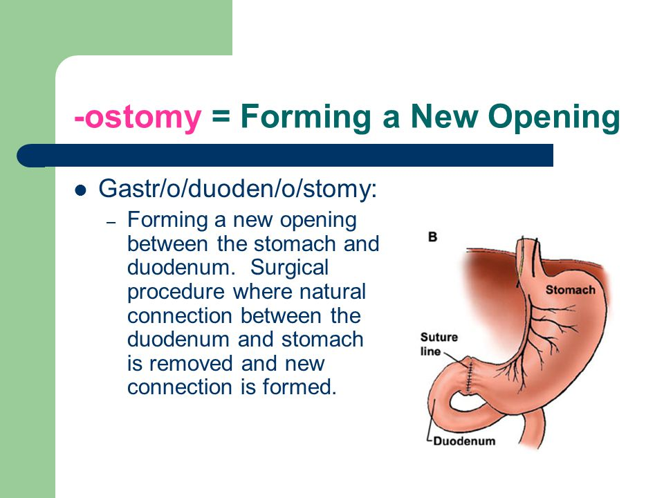 -ostomy = Forming a New Opening