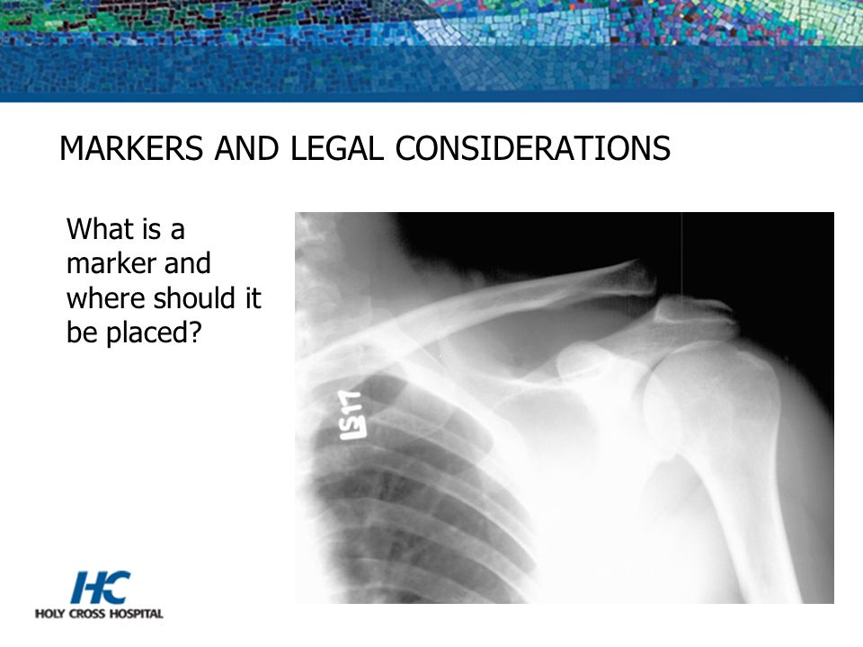 MARKERS AND LEGAL CONSIDERATIONS
