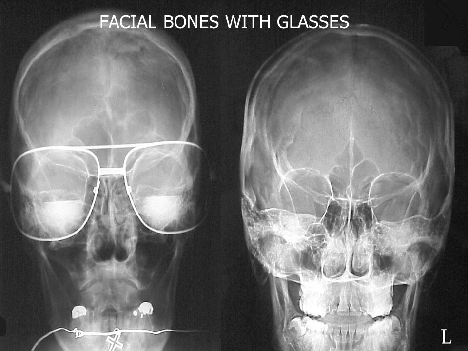 FACIAL BONES WITH GLASSES