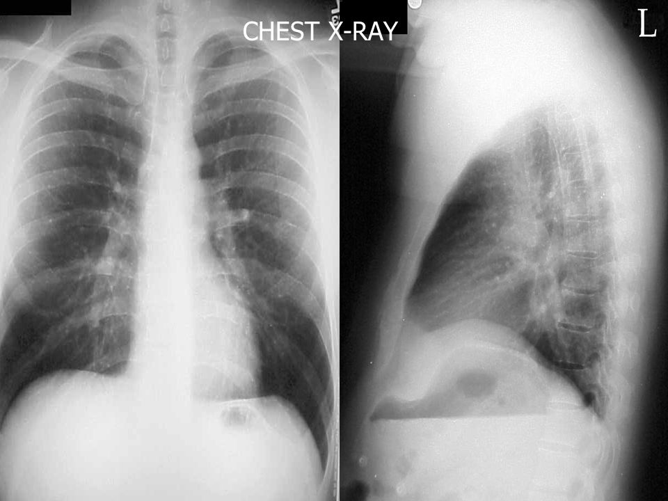 CHEST X-RAY