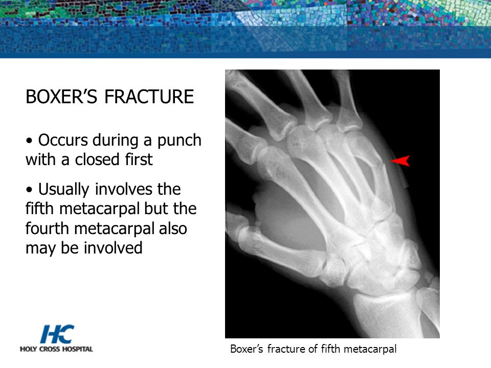 BOXER'S FRACTURE Occurs during a punch with a closed first