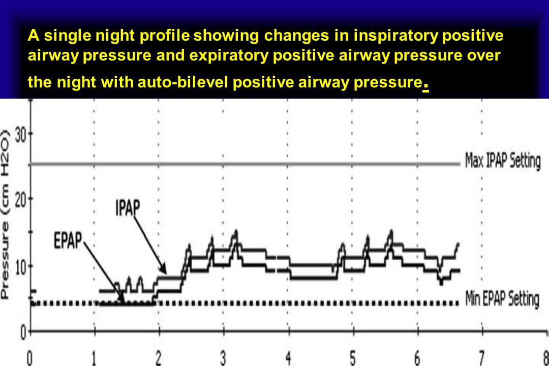 A single night profile showing changes in inspiratory positive airway pressure and expiratory positive airway pressure over the night with auto-bilevel positive airway pressure.