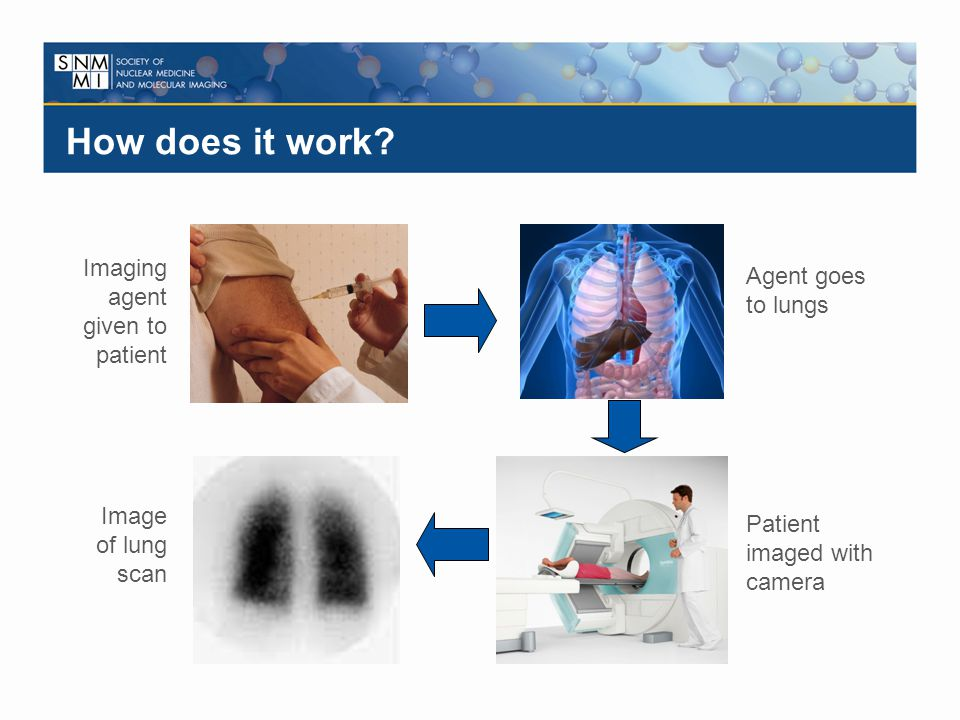 How does it work Imaging agent given to patient Agent goes to lungs