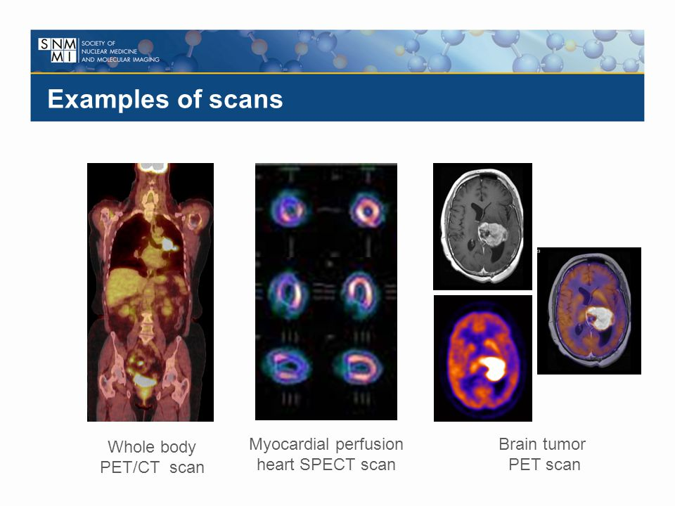 Myocardial perfusion heart SPECT scan