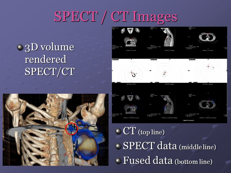 SPECT / CT Images 3D volume rendered SPECT/CT CT (top line)
