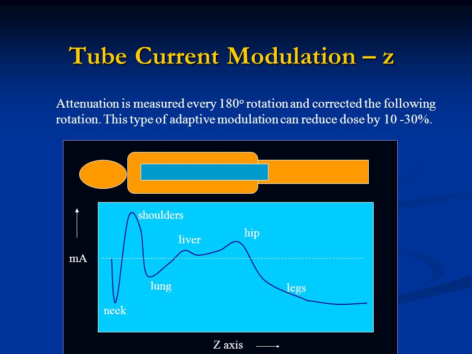 Tube Current Modulation – z