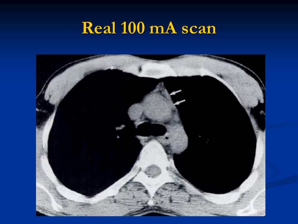 Real 100 mA scan