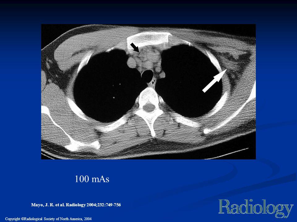100 mAs Mayo, J. R. et al. Radiology 2004;232:749-756