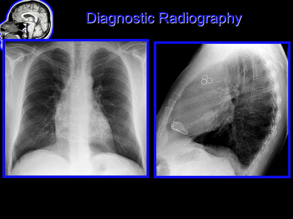 Diagnostic Radiography