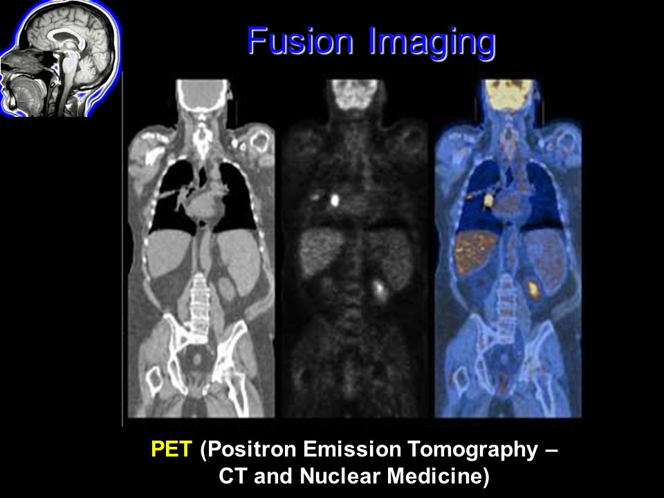 PET (Positron Emission Tomography – CT and Nuclear Medicine)