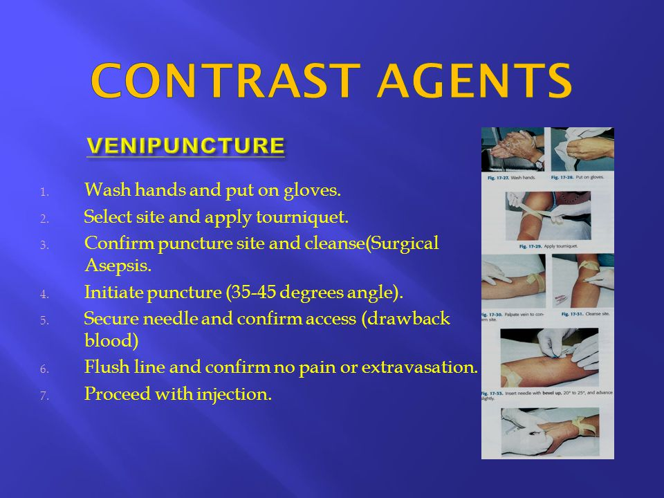 CONTRAST AGENTS VENIPUNCTURE Wash hands and put on gloves.