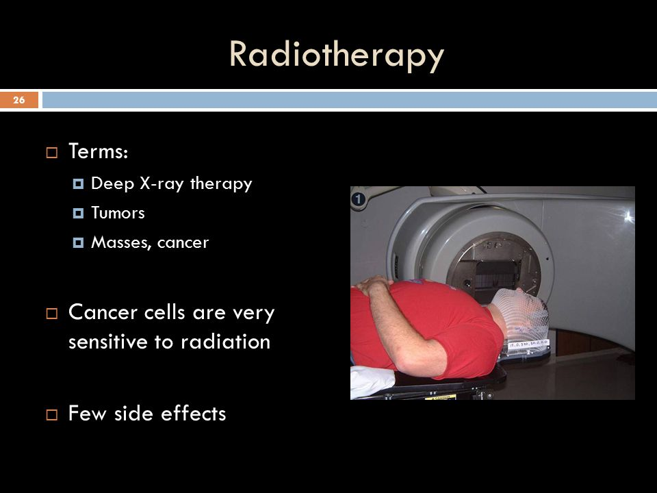 Radiotherapy Terms: Cancer cells are very sensitive to radiation