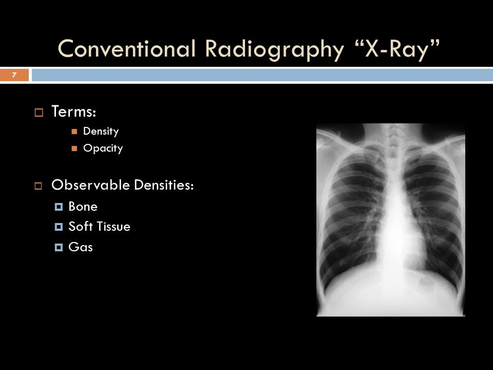 Conventional Radiography X-Ray