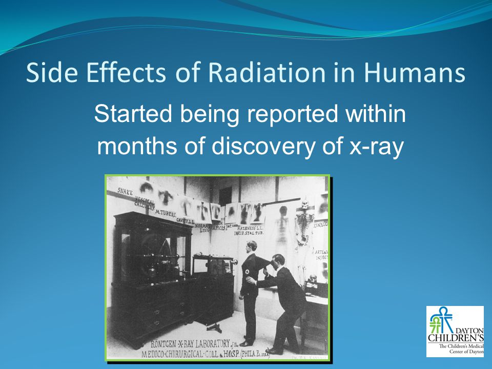 Side Effects of Radiation in Humans