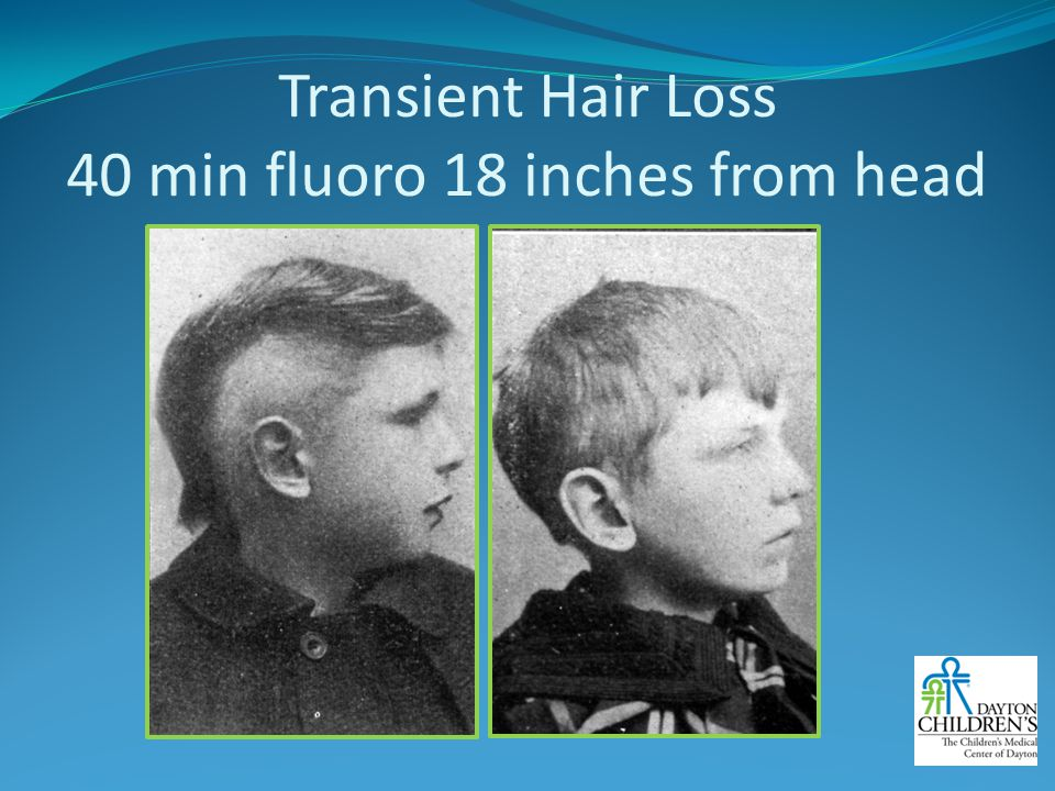 Transient Hair Loss 40 min fluoro 18 inches from head