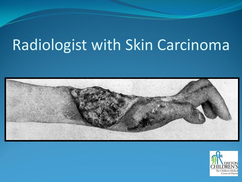 Radiologist with Skin Carcinoma