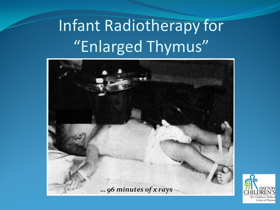 Infant Radiotherapy for Enlarged Thymus