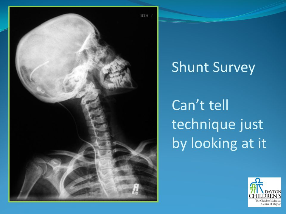 Shunt Survey Can't tell technique just by looking at it