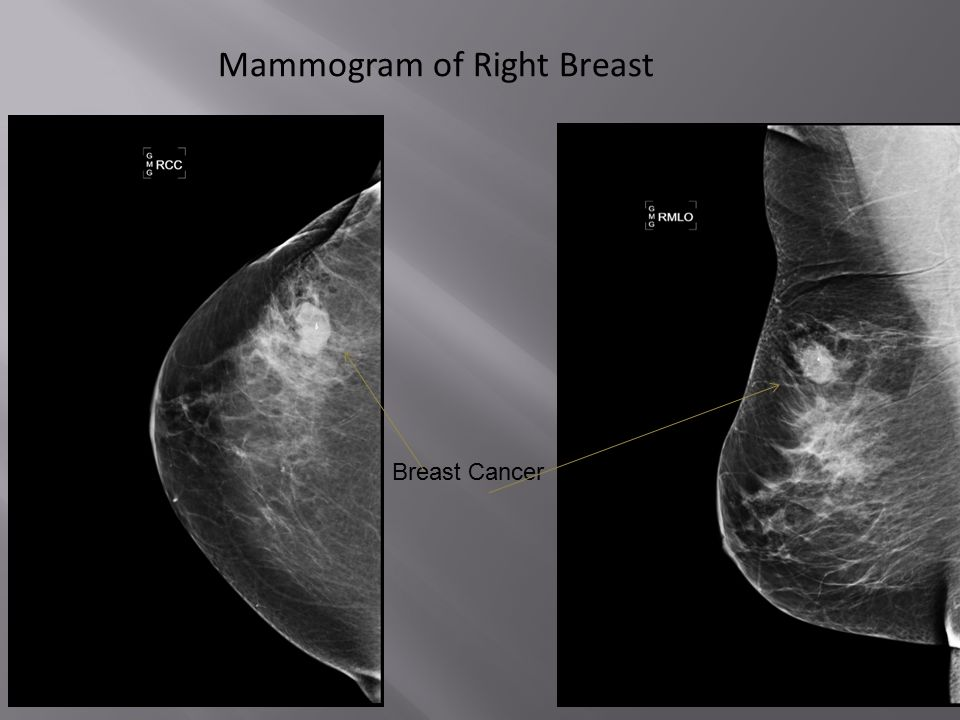Mammogram of Right Breast