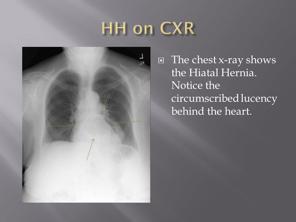 HH on CXR The chest x-ray shows the Hiatal Hernia.