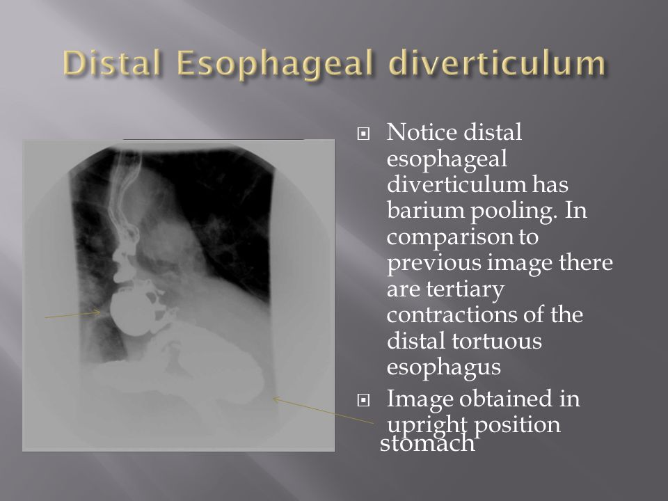 Distal Esophageal diverticulum