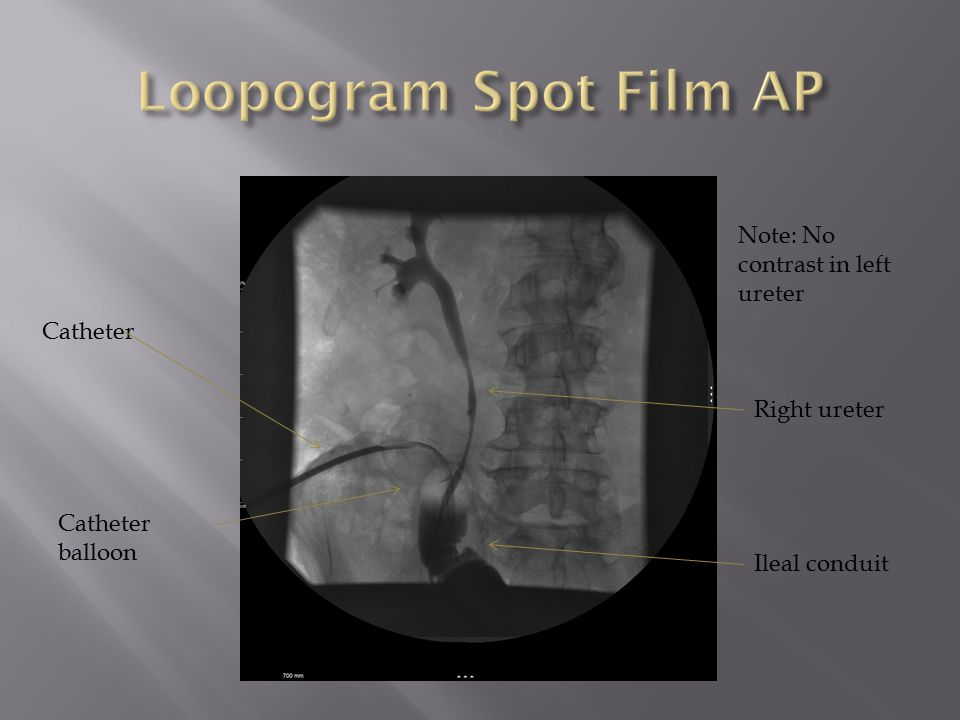 Loopogram Spot Film AP Note: No contrast in left ureter Catheter