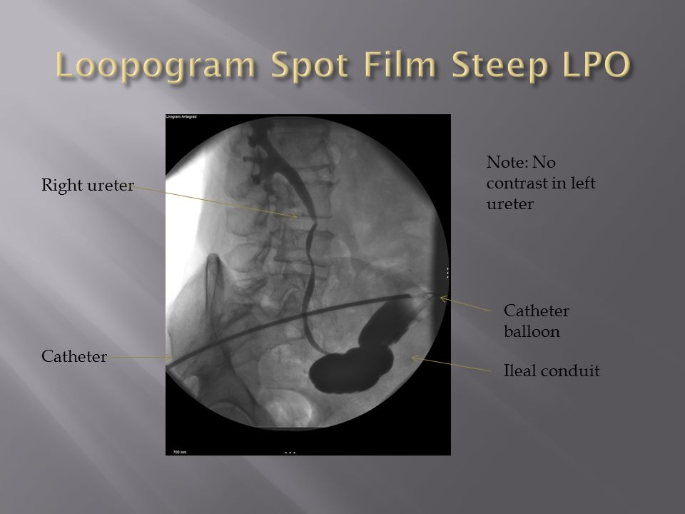 Loopogram Spot Film Steep LPO