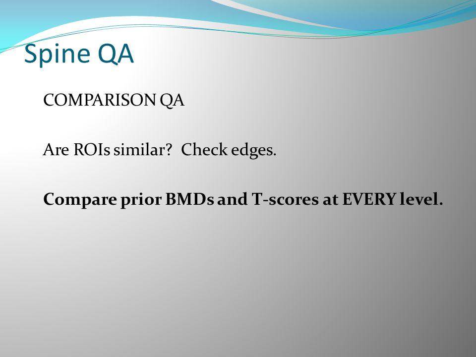 Spine QA COMPARISON QA Are ROIs similar. Check edges.