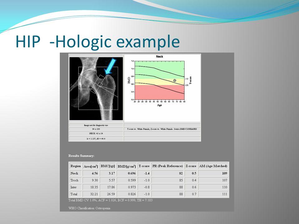 HIP -Hologic example