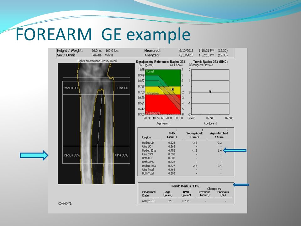 FOREARM GE example
