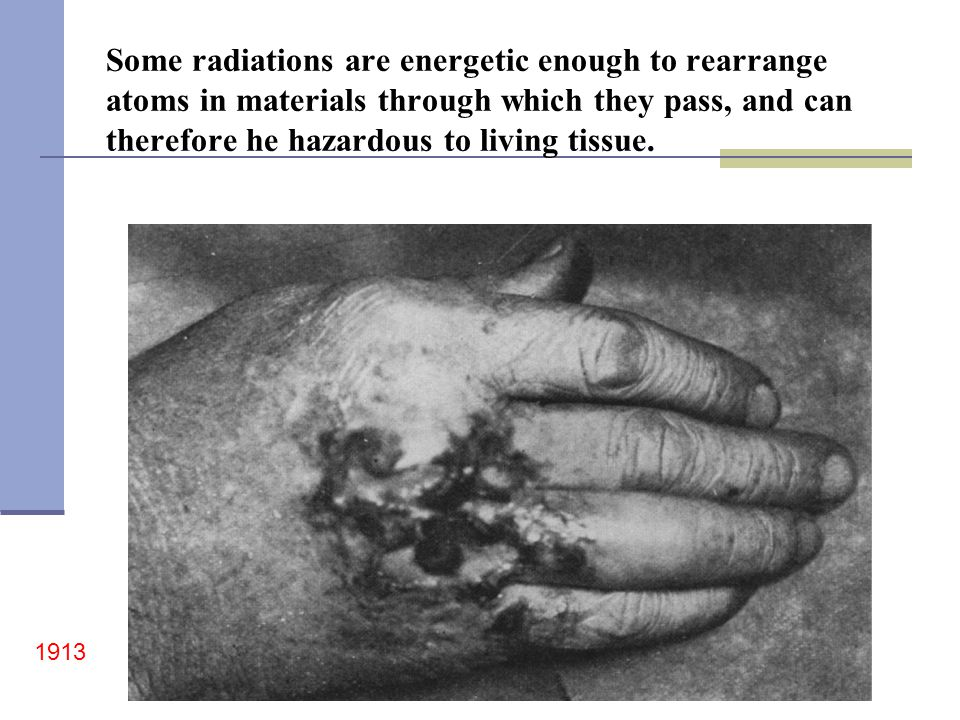 Some radiations are energetic enough to rearrange atoms in materials through which they pass, and can therefore he hazardous to living tissue.