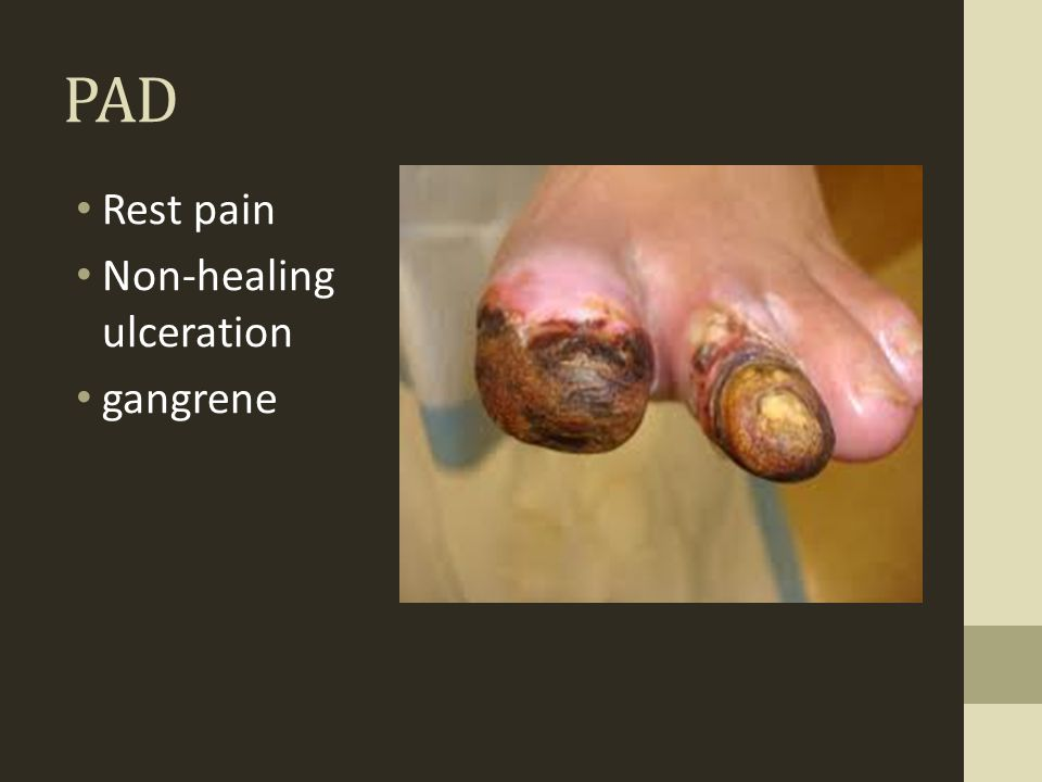 PAD Rest pain Non-healing ulceration gangrene