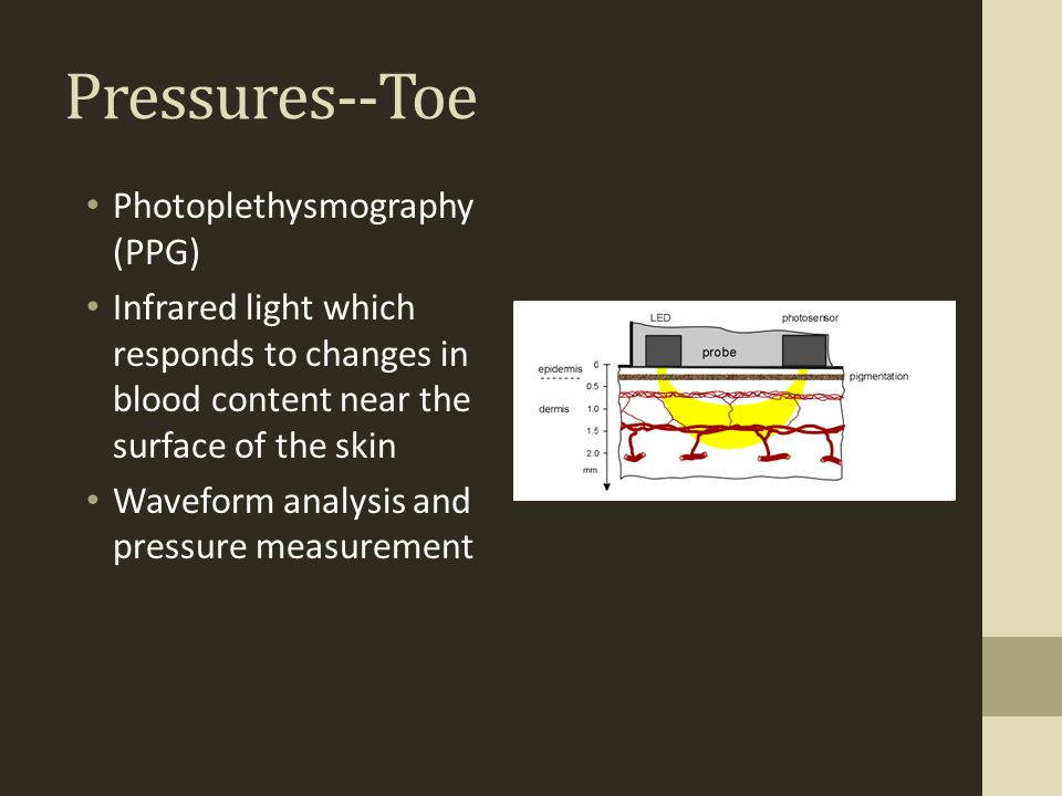 Pressures--Toe Photoplethysmography (PPG)