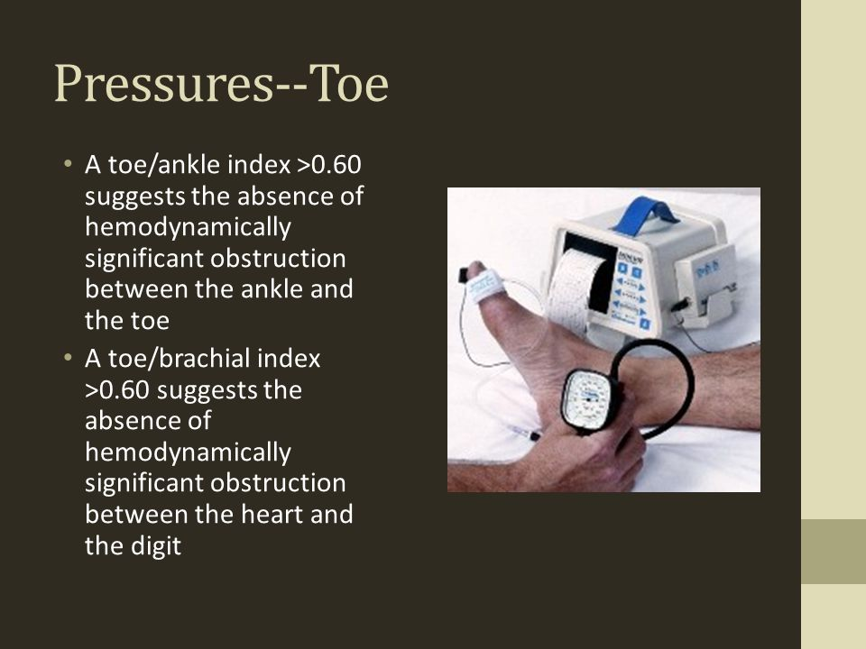Pressures--Toe A toe/ankle index >0.60 suggests the absence of hemodynamically significant obstruction between the ankle and the toe.