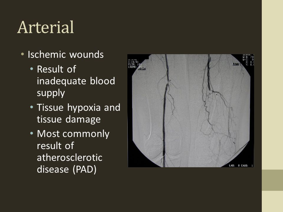 Arterial Ischemic wounds Result of inadequate blood supply