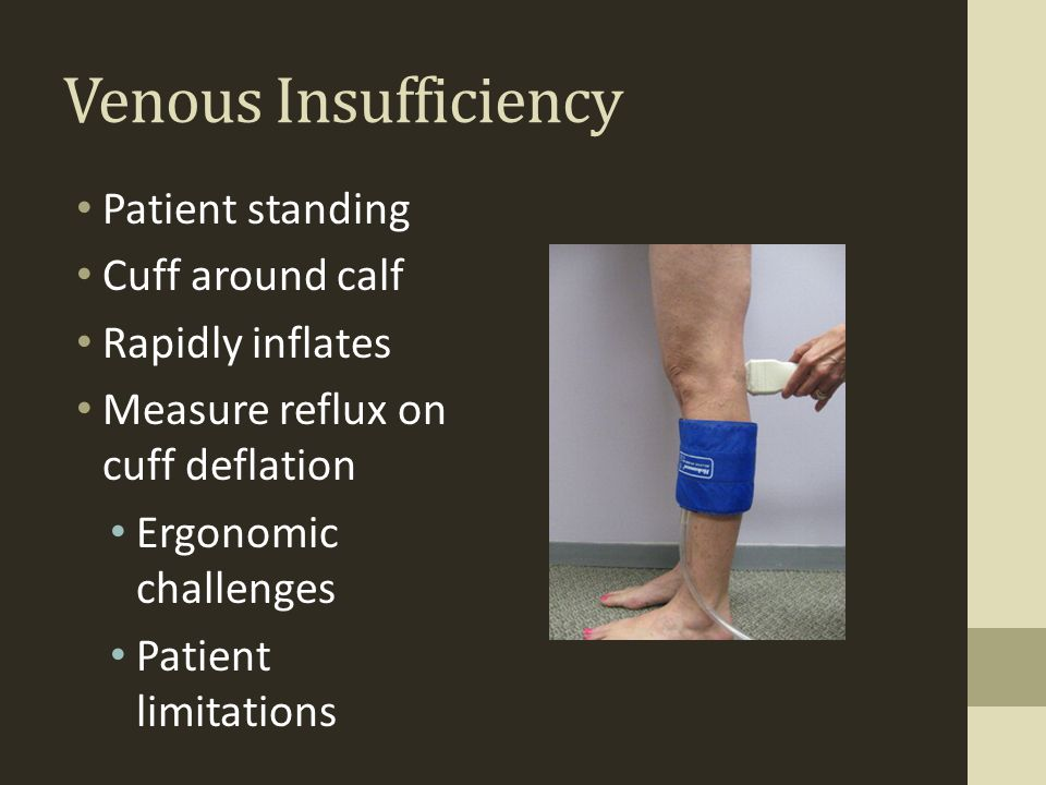 Venous Insufficiency Patient standing Cuff around calf