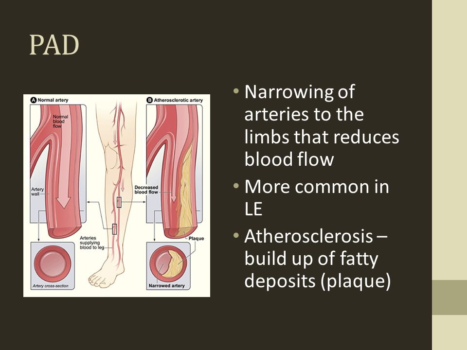 PAD Narrowing of arteries to the limbs that reduces blood flow