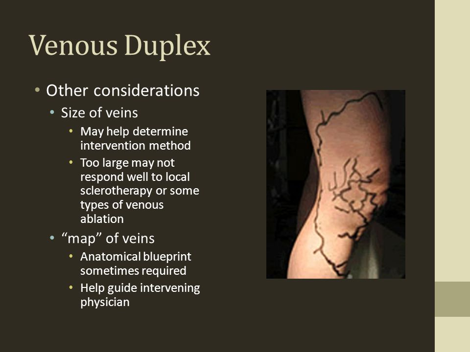 Venous Duplex Other considerations Size of veins map of veins