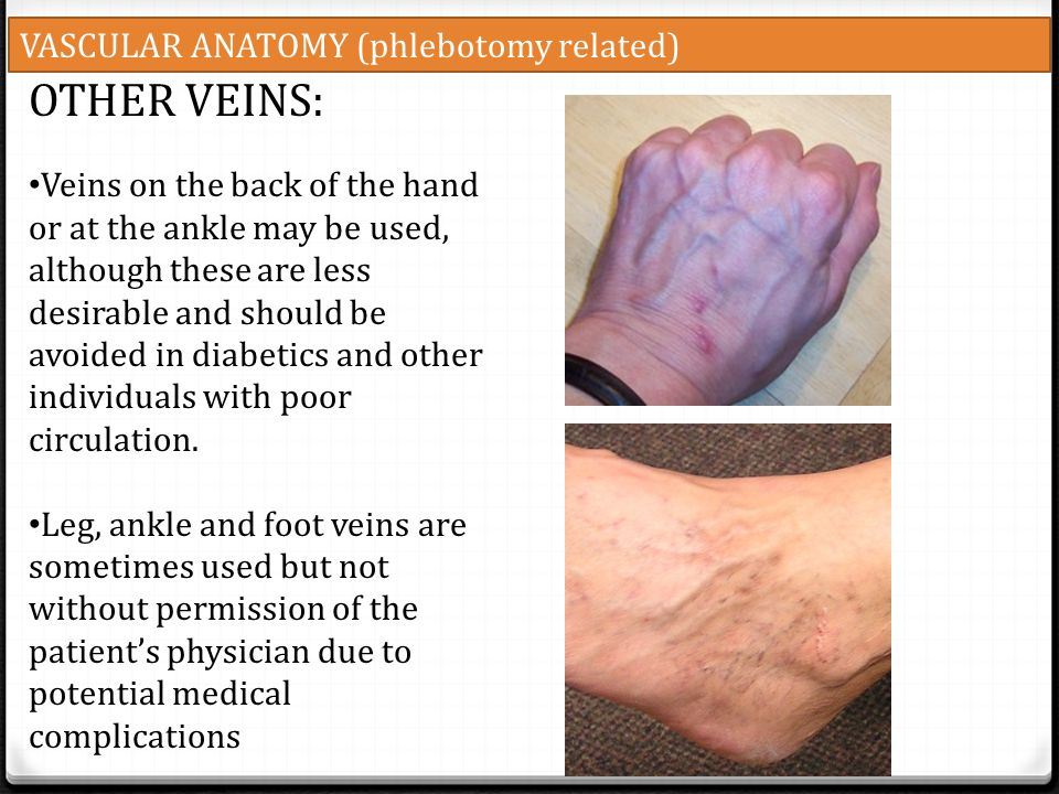 OTHER VEINS: VASCULAR ANATOMY (phlebotomy related)