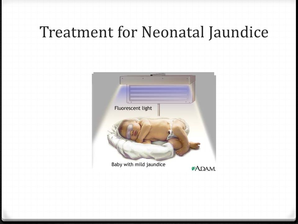 Treatment for Neonatal Jaundice