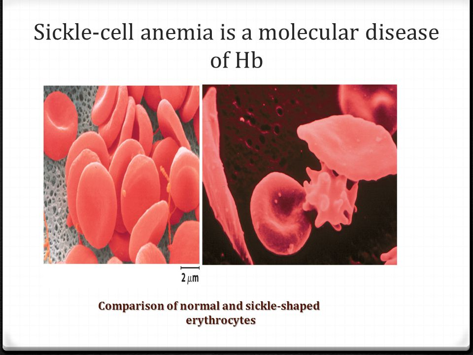 Sickle-cell anemia is a molecular disease of Hb
