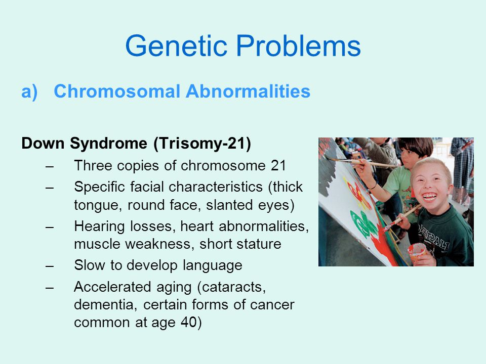 Genetic Problems Chromosomal Abnormalities Down Syndrome (Trisomy-21)