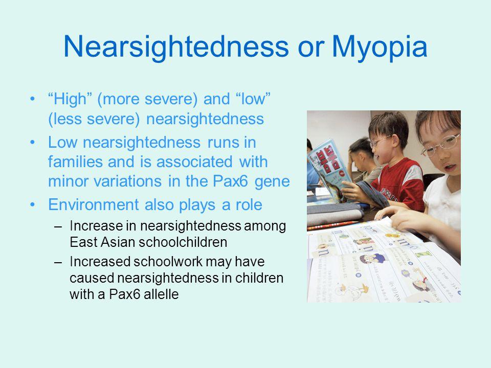 Nearsightedness or Myopia
