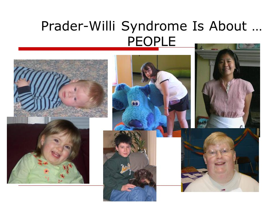 Prader-Willi Syndrome Is About … PEOPLE