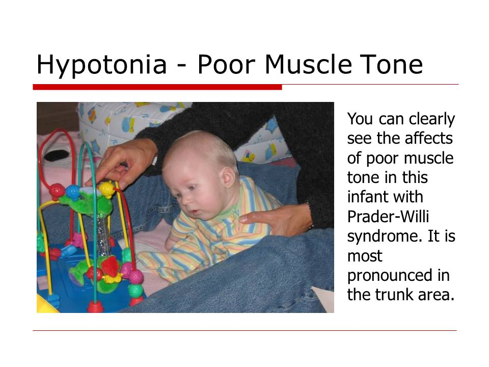 Hypotonia - Poor Muscle Tone