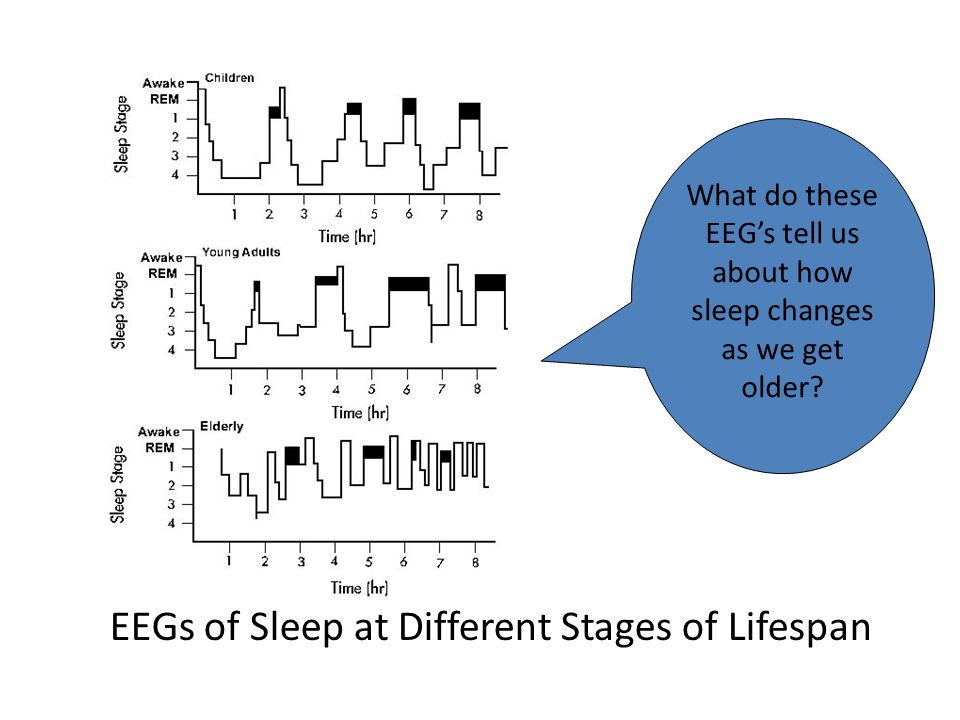EEGs of Sleep at Different Stages of Lifespan