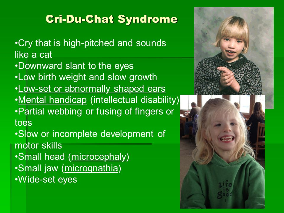 Cri-Du-Chat Syndrome Cry that is high-pitched and sounds like a cat