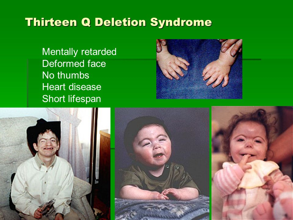 Thirteen Q Deletion Syndrome