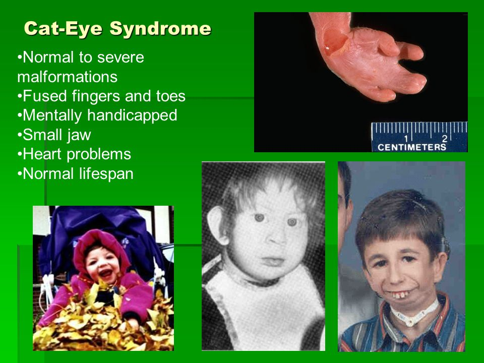 Cat-Eye Syndrome Normal to severe malformations Fused fingers and toes