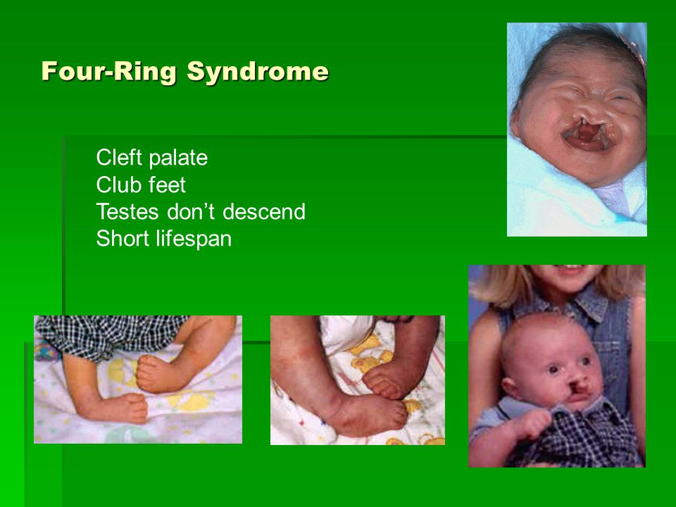 Four-Ring Syndrome Cleft palate Club feet Testes don't descend